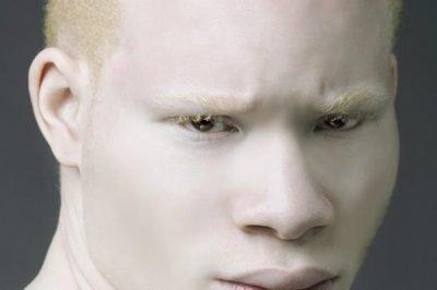 albinism in Nigeria